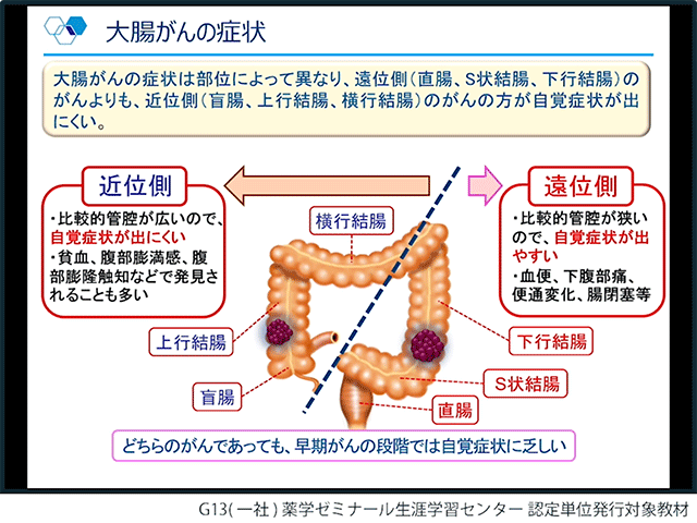 大腸がんの基礎知識と最新の医療現場