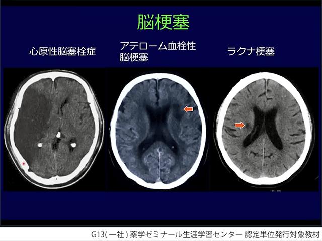 脳神経疾患の病態と処方の画像